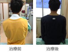 肩こり症例1