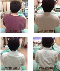 肩こり症例3