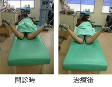 骨盤矯正 左股関節の痛み