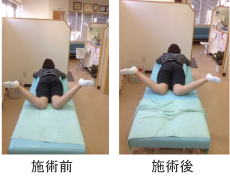 骨盤矯正 右背部及び腰の痛み