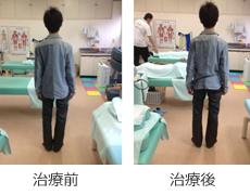 骨盤矯正症例2