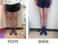 O脚矯正症例8