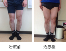 O脚矯正症例9