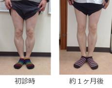 O脚矯正症例10