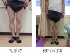 O脚矯正症例11