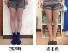 O脚矯正症例12
