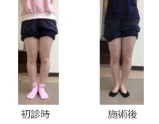 O脚矯正症例13