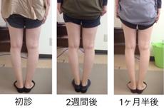 O脚矯正症例15