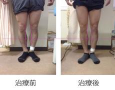 O脚矯正症例16