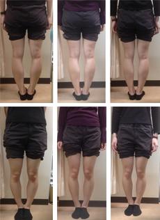 O脚矯正症例17