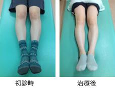 O脚矯正希望症例3