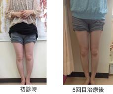 O脚矯正希望症例4