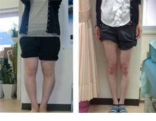 O脚矯正 骨盤矯正症例5