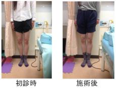 O脚矯正症例7
